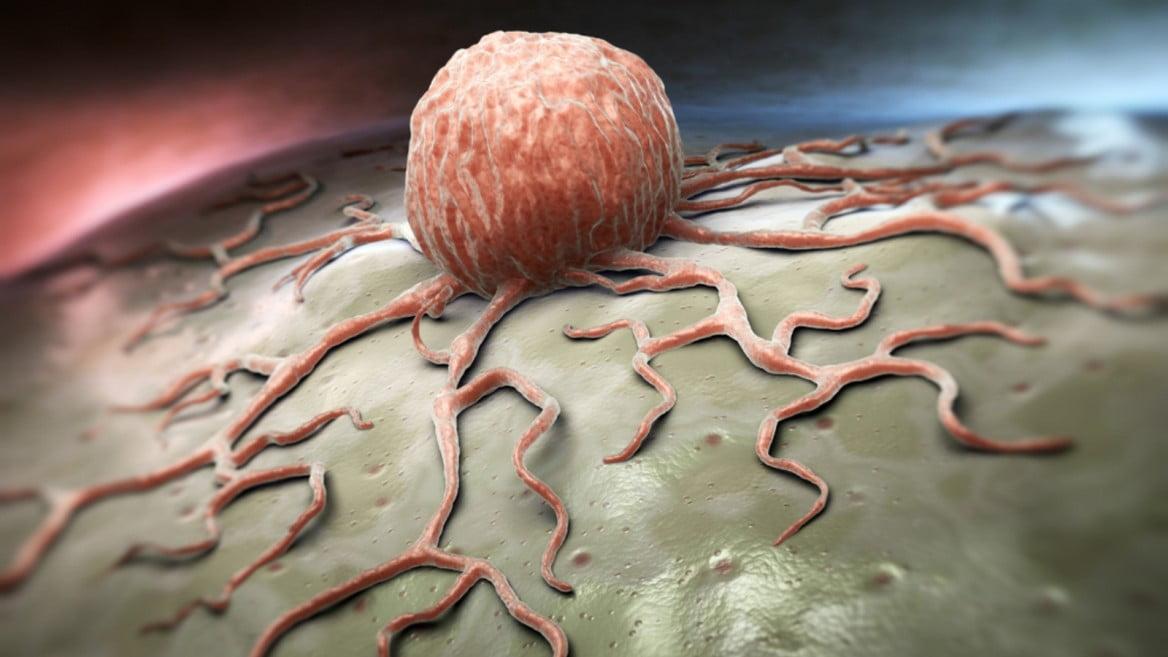 Des chercheurs israéliens parviennent à stopper la propagation du cancer du sein chez une souris