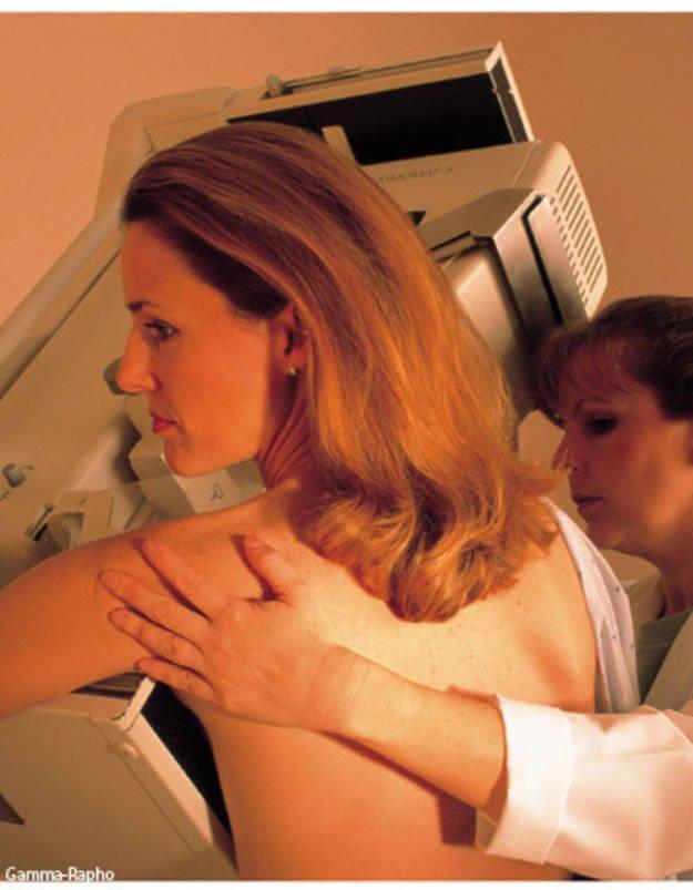 Alliance pour le cancer du sein bethesda