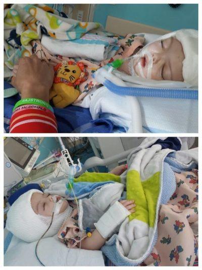Les jumeaux après l'opération délicate