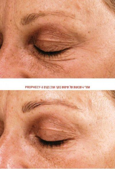 Avant et après traitement avec la crème Prophecy d'acide hyaluronique lancée en Israël