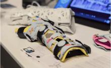 Première en Israël: l'impression 3D utilisée en chirurgie orthopédique