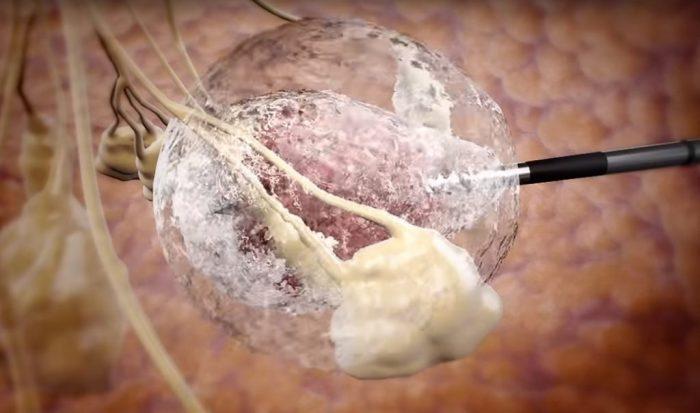 99% de réussite pour un traitement israélien de la tumeur du sein par congélation