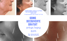 Le lifting acupuncture par Shmuel Haggai