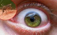 Virus du Nil Occidental maladie mortelle