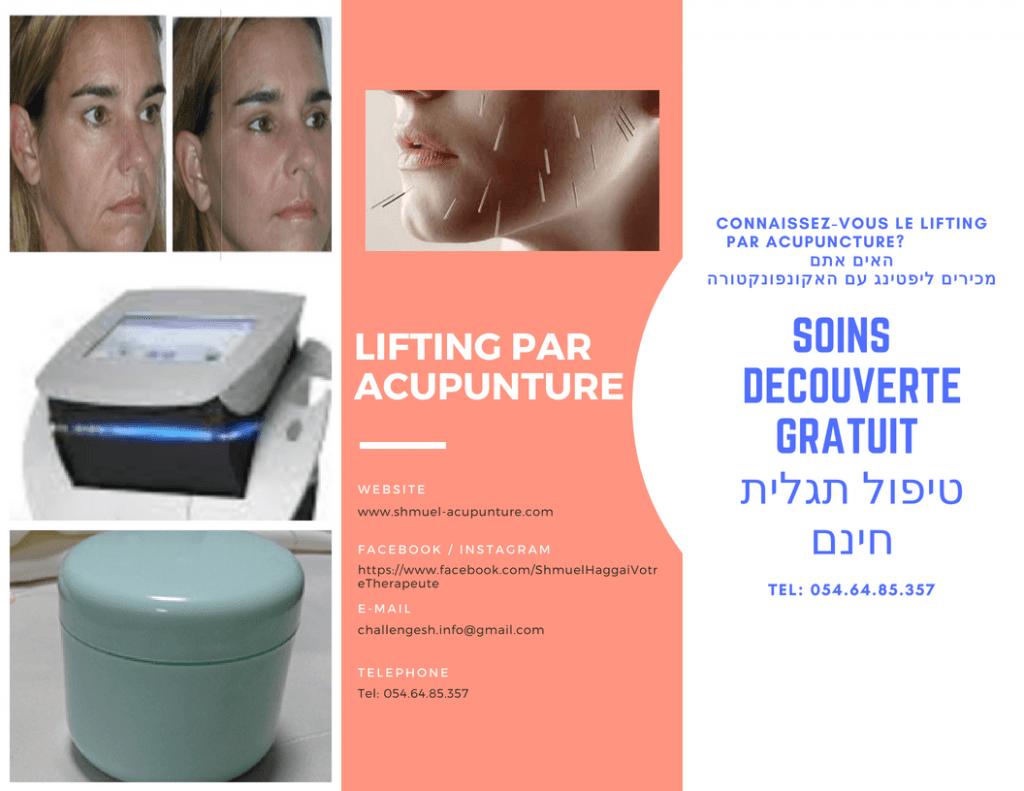 Le lifting acupuntural de Shmuel Haggai