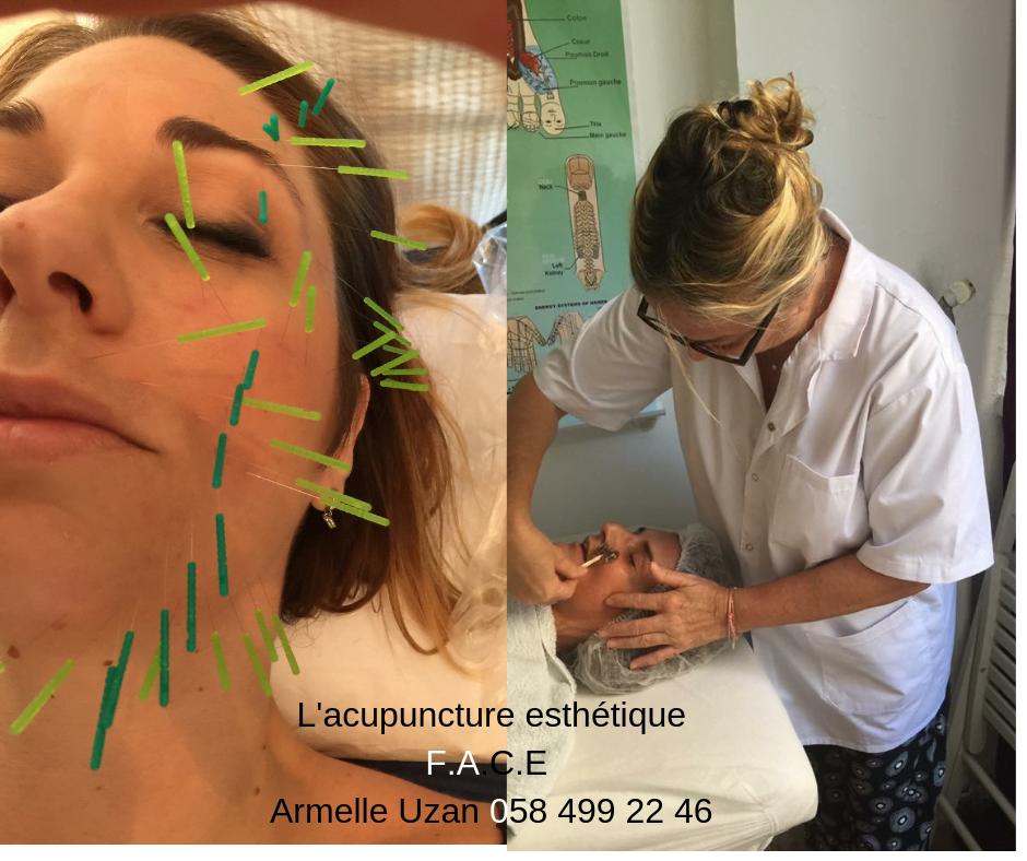 Armelle Uzan acupuncteur esthétique en France et en Israël