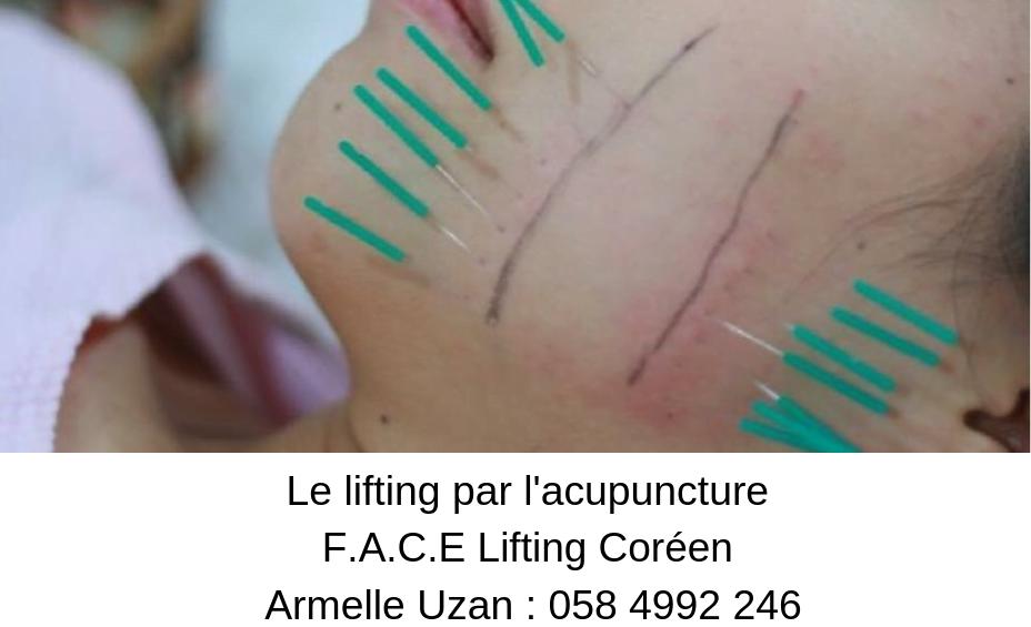 Le lifting par l'acupuncture F.A.C.E Lifting Coréen Armelle Uzan _ 058 4992 246
