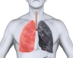 L'emphysème est une maladie pulmonaire des voies aériennes distales caractérisée par la destruction de la paroi des alvéoles