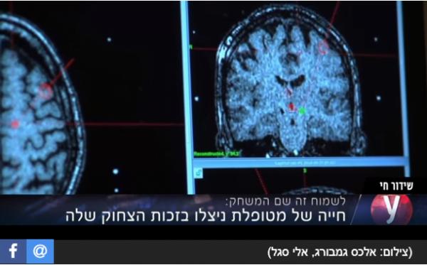 Une Israélienne sauvée d'un anévrisme cérébral grâce à son rire. Le scan de Galit