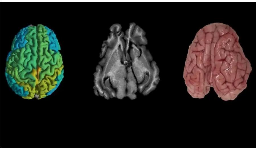 les maladies cérébrales israel