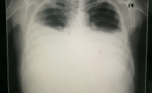 Épanchement pleural bilatéral (crédit photo: Wikimedia Commons)