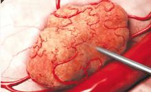 destruction des tumeurs cancéreuses par rayonnement Alpha