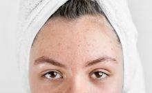 Sol Gel Ha  traitement contre l'acné en 12 heures