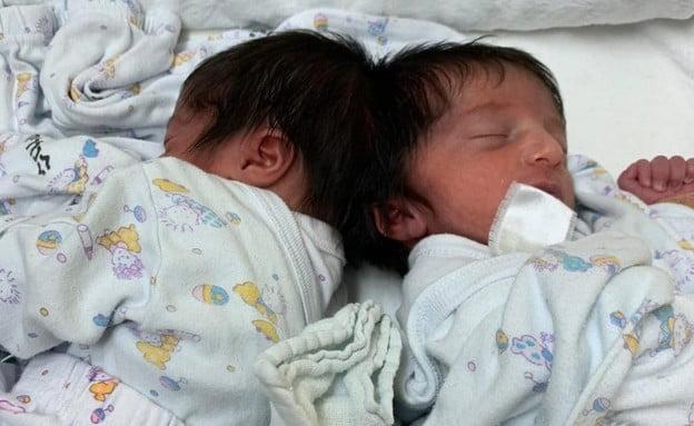 Une première en Israël : opération pour séparer des jumelles siamoises