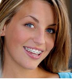 Quand les adultes veulent un appareil dentaire alliance for Bagues dentaires interieur